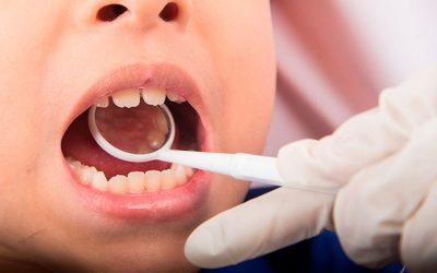 How Can I Help My Child Prevent Cavities?
